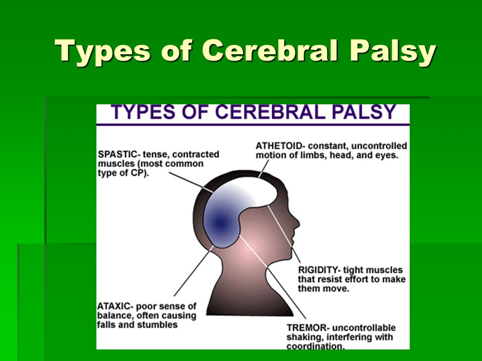 Types of Cerebral Palsy