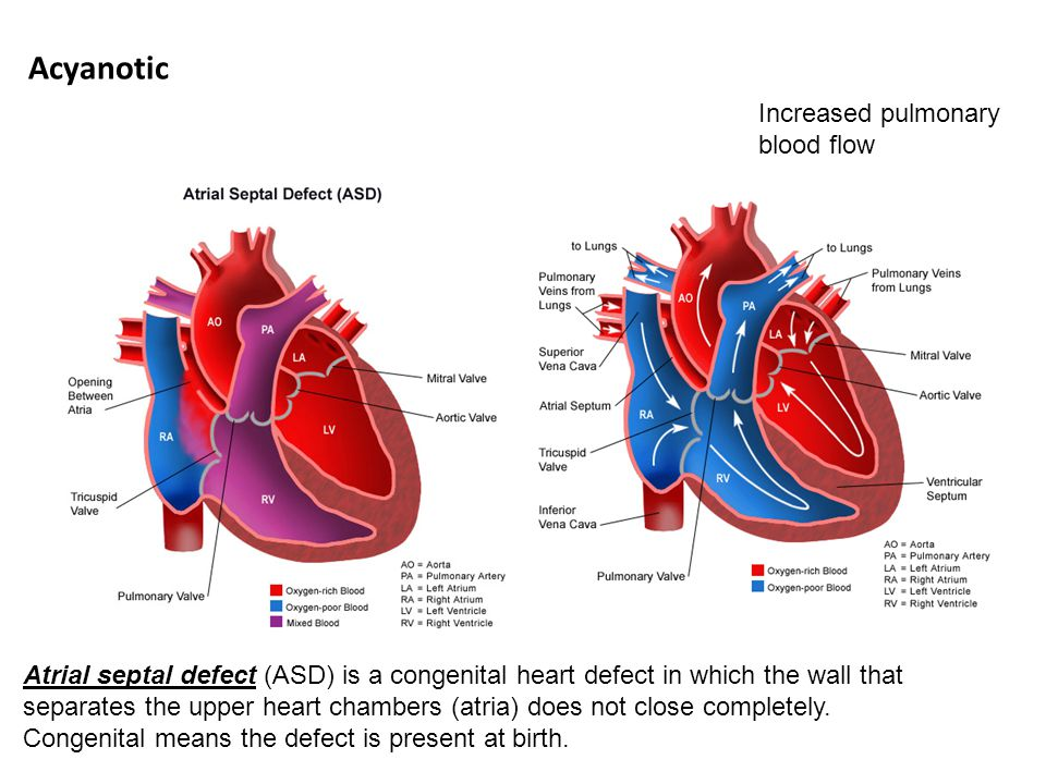 Ventricular septal defect (VSD)describes one or more holes in the wall that separates the right and left ventricles of the heart.