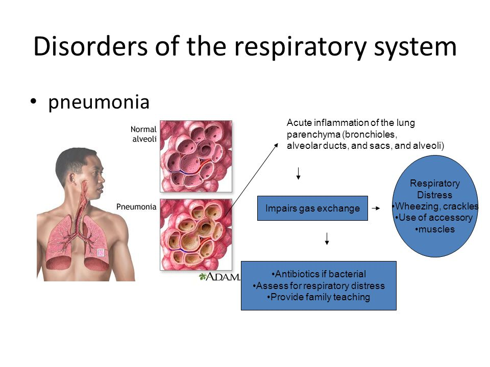 Disorders of Respiratory Function- Bronchitis/Bronchiolitis Viral infection of the lower respiratory tract characterized by inflammation of the Bronchioles and production of mucous (usually caused by RSV) Wheezing Crackles Tachypnea Retractions Assess for respiratory Distress Contact isolation Prescribed Medications (RT) O2 if needed Fluids
