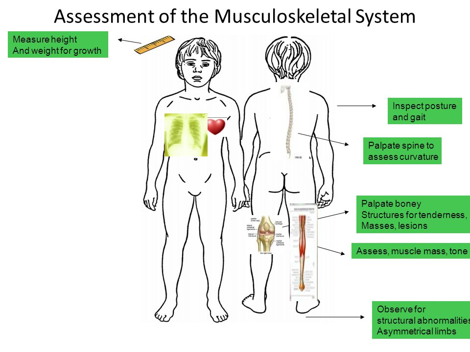 Disorders of Musculoskeletal Function A spinal deformity that usually Involves lateral curvature of the Spine, spinal rotation, and thoracic Kyphosis (hunch back) Surgery to correct A disorder caused by decreased blood supply to the femoral head; results in epiphyseal necrosis and degeneration Legg-Calvé-Perthes Disease Developmental Dysplasia of the Hip A developmental abnormality of the femoral head, the acetabulum, or both; subluxation of the hip Scoliosis