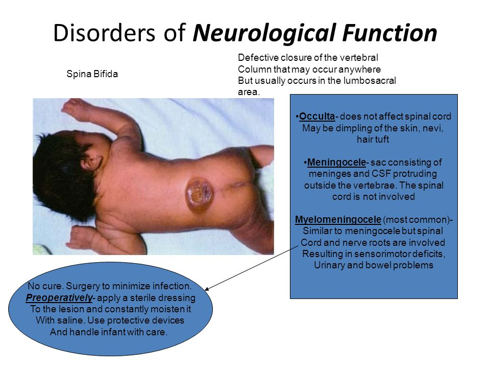 Disorders of Neurological Function Encephalitis- An inflammation of the CNS, mainly the brain and spinal cord Cerebral palsy- group of disabilities caused by injury or insult to the brain either before or during birth Seizure disorders- disturbances in normal brain function that result in abnormal electrical discharges in the brain, which can cause LOC, uncontrolled body movements, changes in behaviors and sensation, and changes in the autonomic system.