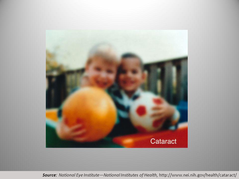 Source: National Eye InstituteNational Institutes of Health, http://www.nei.nih.gov/health/cataract/