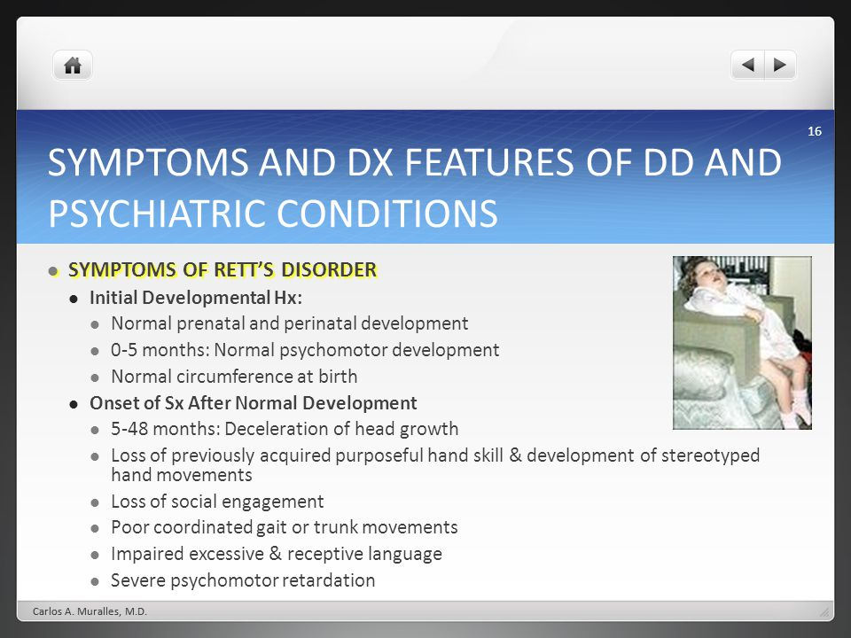 16 SYMPTOMS AND DX FEATURES OF DD AND PSYCHIATRIC CONDITIONS SYMPTOMS OF RETTS DISORDER SYMPTOMS OF RETTS DISORDER Initial Developmental Hx: Normal prenatal and perinatal development 0-5 months: Normal psychomotor development Normal circumference at birth Onset of Sx After Normal Development 5-48 months: Deceleration of head growth Loss of previously acquired purposeful hand skill & development of stereotyped hand movements Loss of social engagement Poor coordinated gait or trunk movements Impaired excessive & receptive language Severe psychomotor retardation Carlos A.