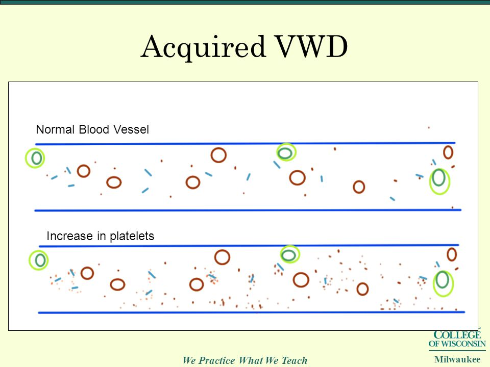 We Practice What We Teach Milwaukee Acquired VWD Normal Blood Vessel Increase in platelets