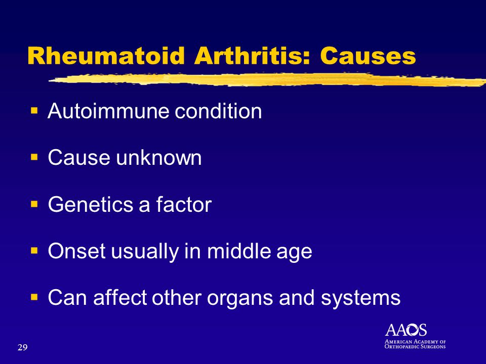 29 Rheumatoid Arthritis: Causes Autoimmune condition Cause unknown Genetics a factor Onset usually in middle age Can affect other organs and systems