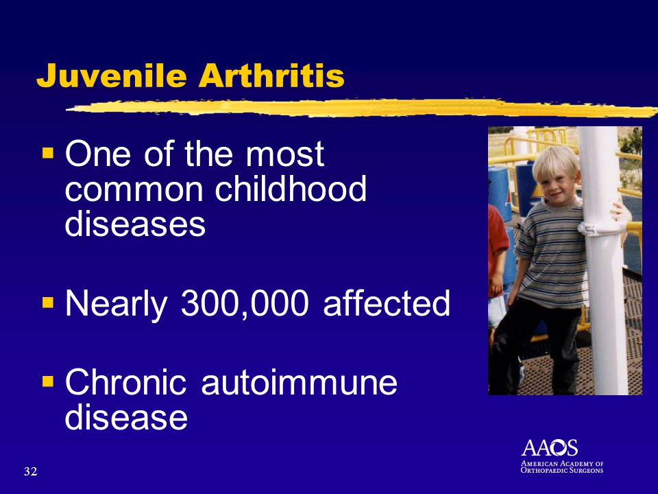 32 Juvenile Arthritis One of the most common childhood diseases Nearly 300,000 affected Chronic autoimmune disease