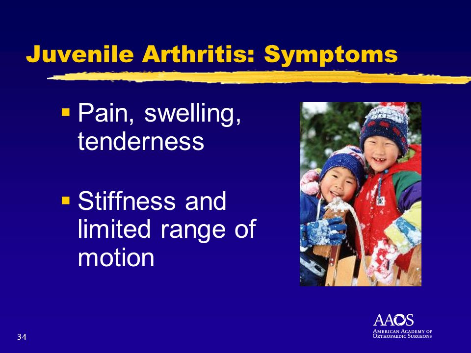 34 Juvenile Arthritis: Symptoms Pain, swelling, tenderness Stiffness and limited range of motion
