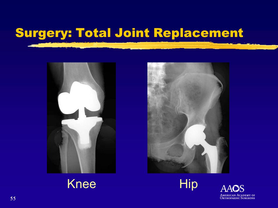 55 KneeHip Surgery: Total Joint Replacement
