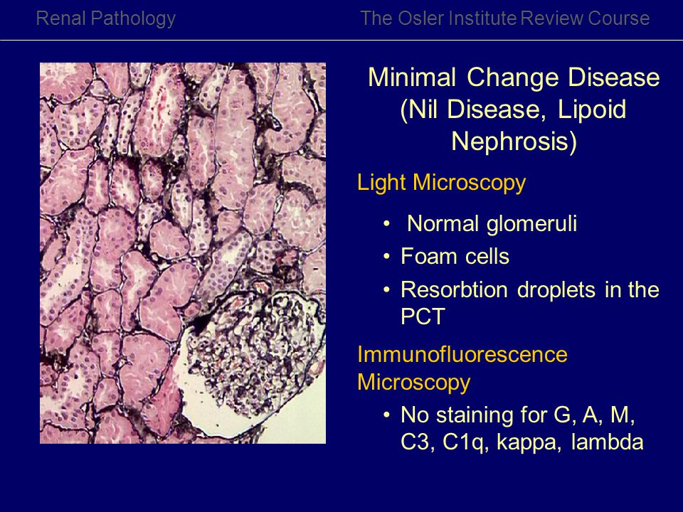 Renal PathologyThe Osler Institute Review Course Minimal Change Disease (Nil Disease, Lipoid Nephrosis) Light Microscopy Normal glomeruli Foam cells R