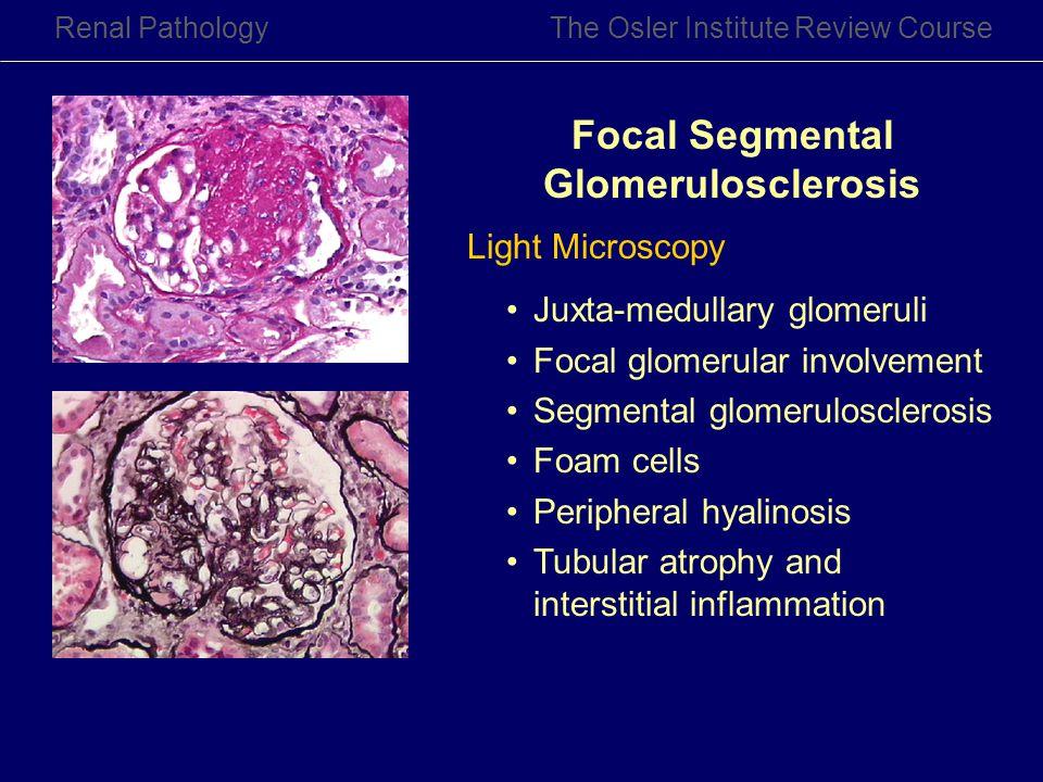 Renal PathologyThe Osler Institute Review Course Focal Segmental Glomerulosclerosis Light Microscopy Juxta-medullary glomeruli Focal glomerular involv
