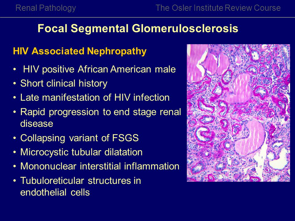 Renal PathologyThe Osler Institute Review Course HIV Associated Nephropathy HIV positive African American male Short clinical history Late manifestati