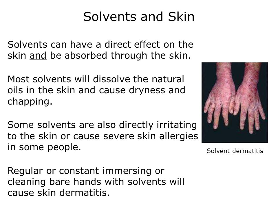 Solvents and Skin Solvents can have a direct effect on the skin and be absorbed through the skin. Most solvents will dissolve the natural oils in the