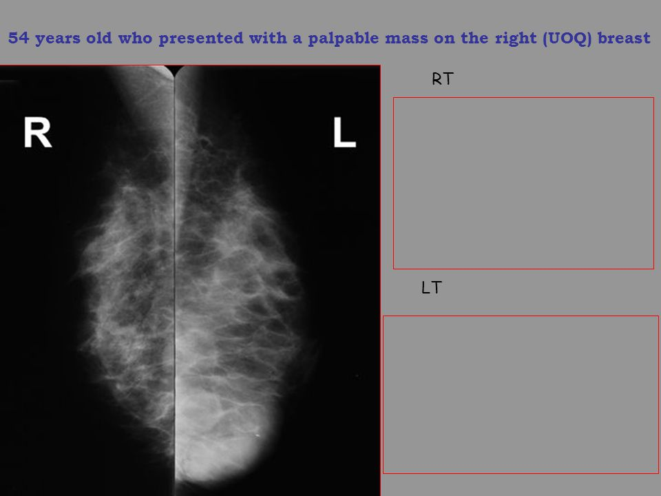 54 years old who presented with a palpable mass on the right (UOQ) breast RT LT