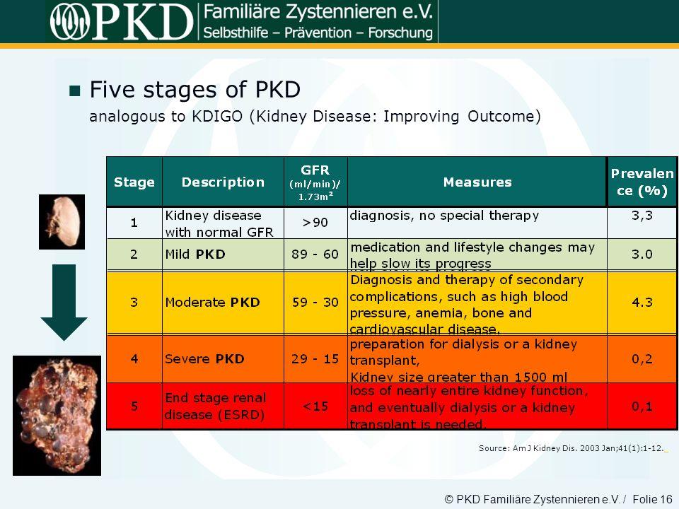 © PKD Familiäre Zystennieren e.V. / Folie 16 Five stages of PKD analogous to KDIGO (Kidney Disease: Improving Outcome) Source: Am J Kidney Dis. 2003 J