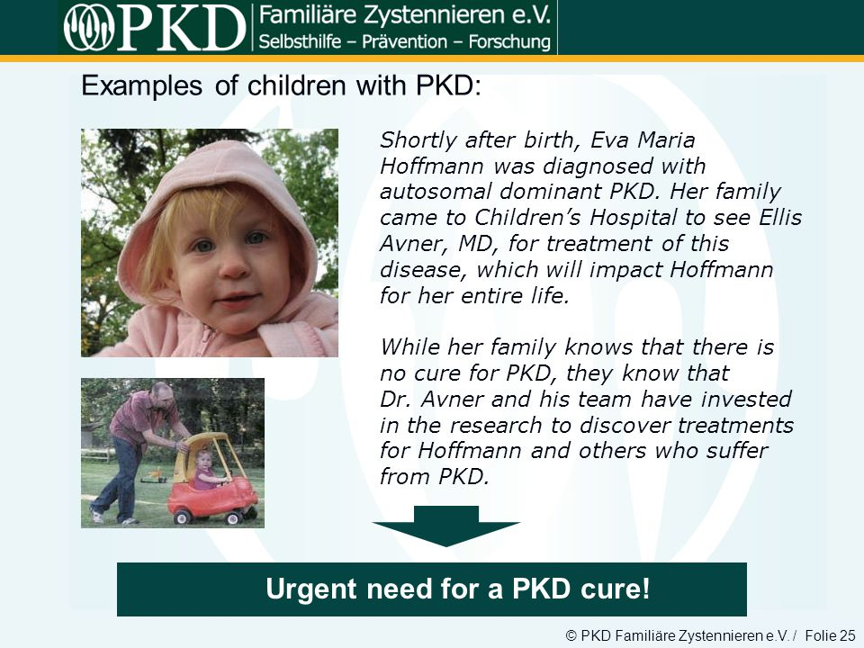 © PKD Familiäre Zystennieren e.V. / Folie 25 Examples of children with PKD: xxx Urgent need for a PKD cure! Shortly after birth, Eva Maria Hoffmann wa