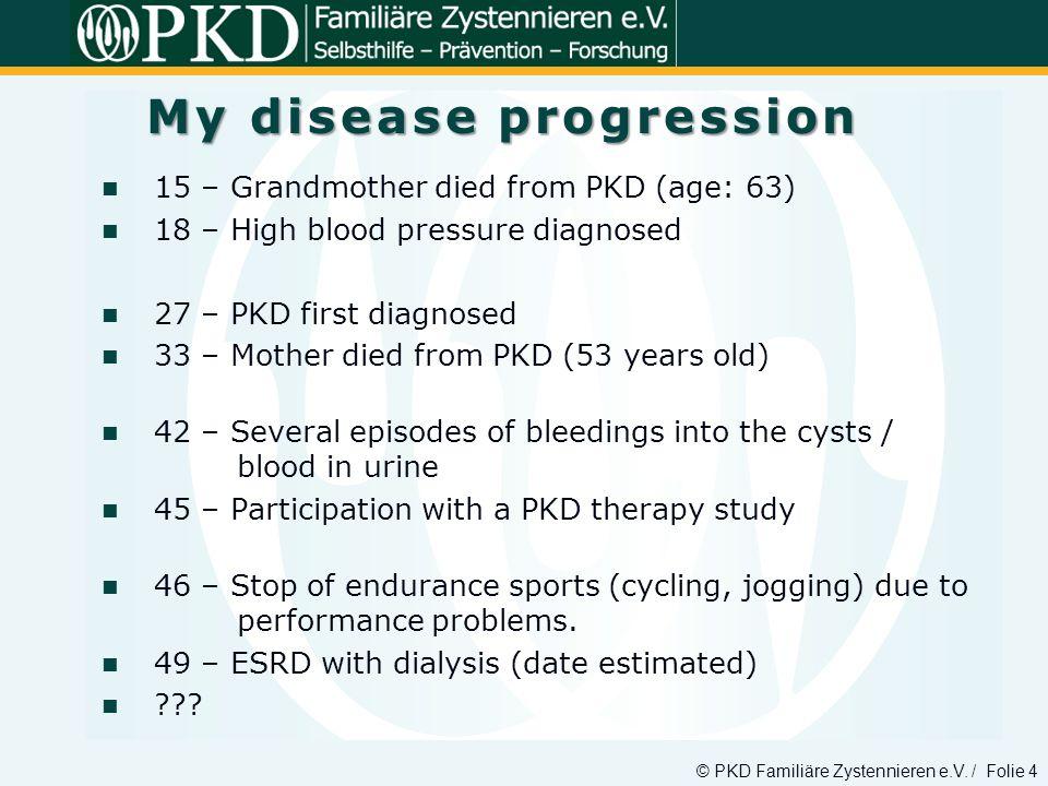 © PKD Familiäre Zystennieren e.V. / Folie 4 15 – Grandmother died from PKD (age: 63) 18 – High blood pressure diagnosed 27 – PKD first diagnosed 33 –