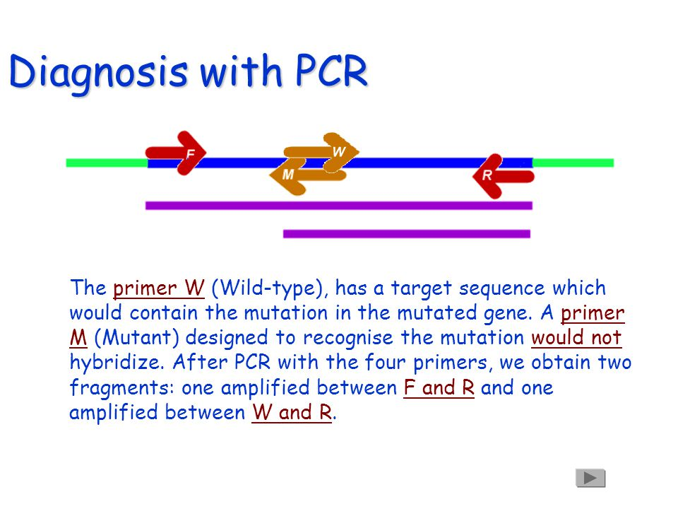 Diagnostic with PCR In the mutated gene, the primer W (Wild-type), does not hybridize.