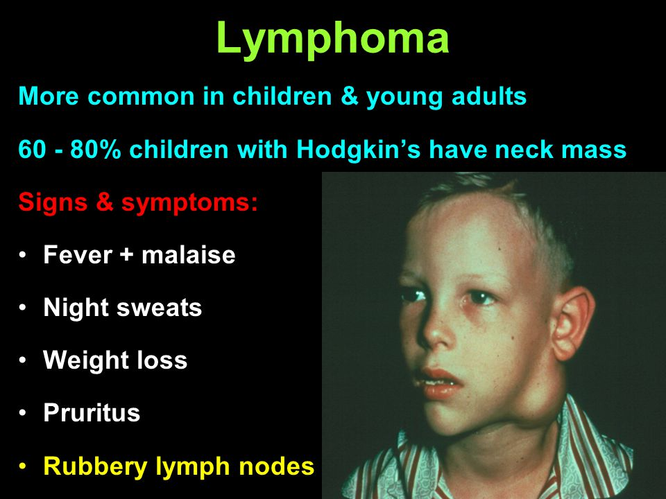 Lymphoma More common in children & young adults 60 - 80% children with Hodgkins have neck mass Signs & symptoms: Fever + malaise Night sweats Weight l