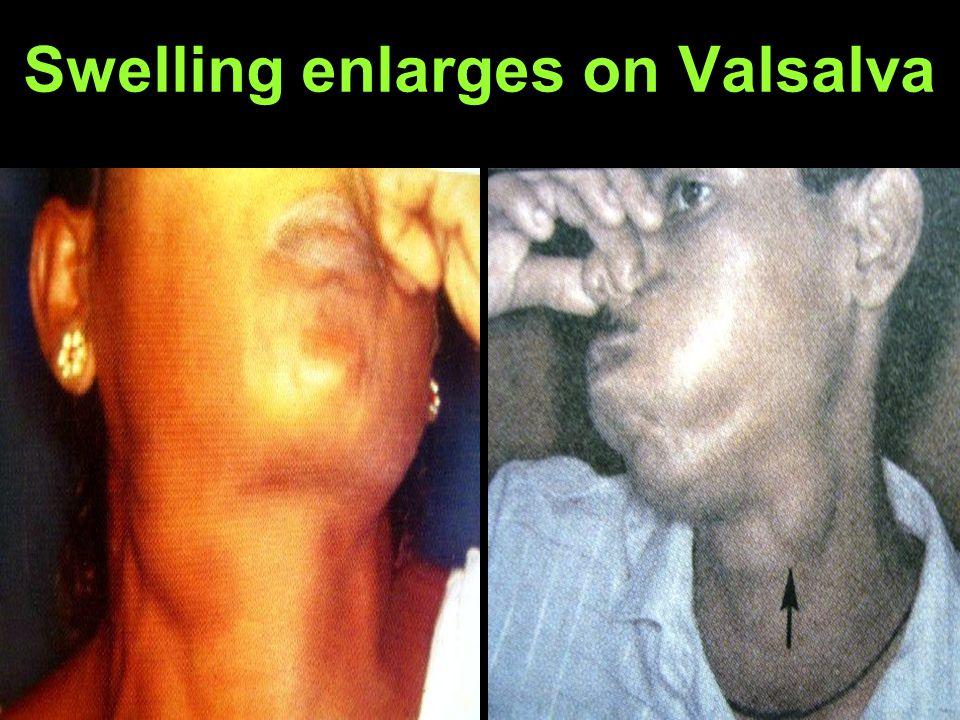 Swelling enlarges on Valsalva