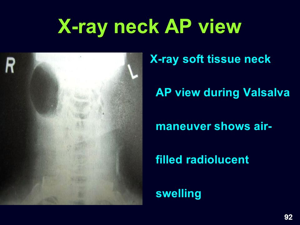 92 X-ray neck AP view X-ray soft tissue neck AP view during Valsalva maneuver shows air- filled radiolucent swelling