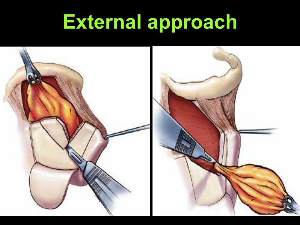 External approach