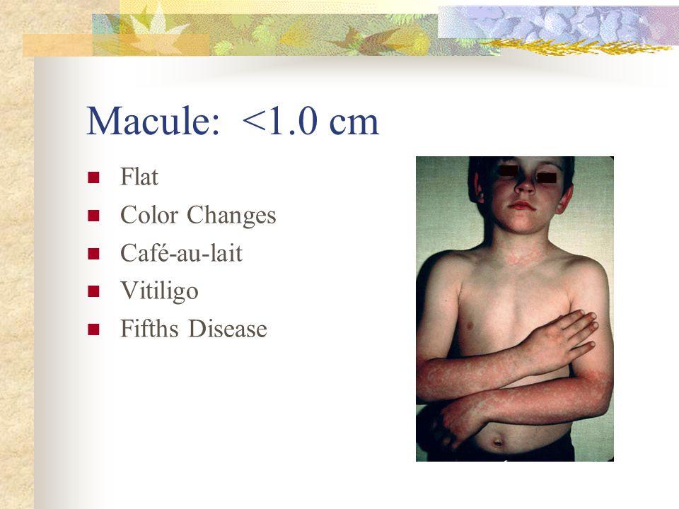 Macule: <1.0 cm Flat Color Changes Café-au-lait Vitiligo Fifths Disease