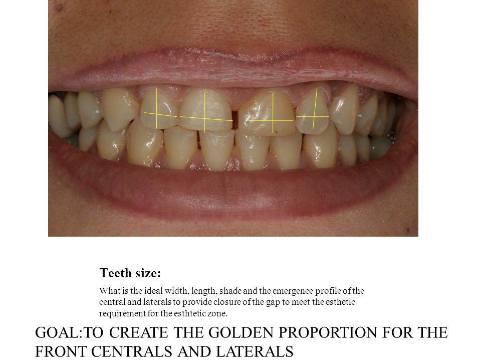 EXCELLENT GINGIVA HEALTH(HEALTHY GUMS) Is the state of the gums healthy enough to fulfill the requirements for the veneers or composite mockup? Can we