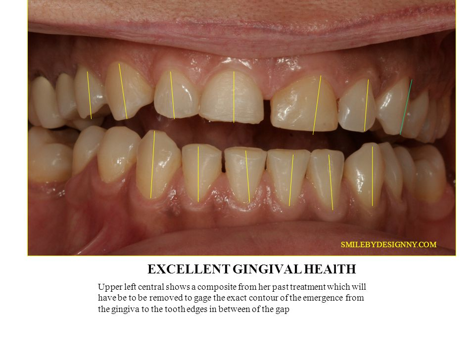 INCISAL EDGE: How much esthetic display do we need in designing the proper length with lips at rest and when smiling?