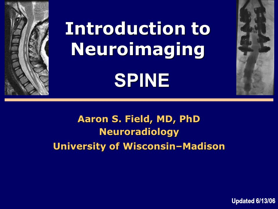 Introduction to Neuroimaging Aaron S. Field, MD, PhD Neuroradiology University of Wisconsin–Madison SPINE Updated 6/13/06