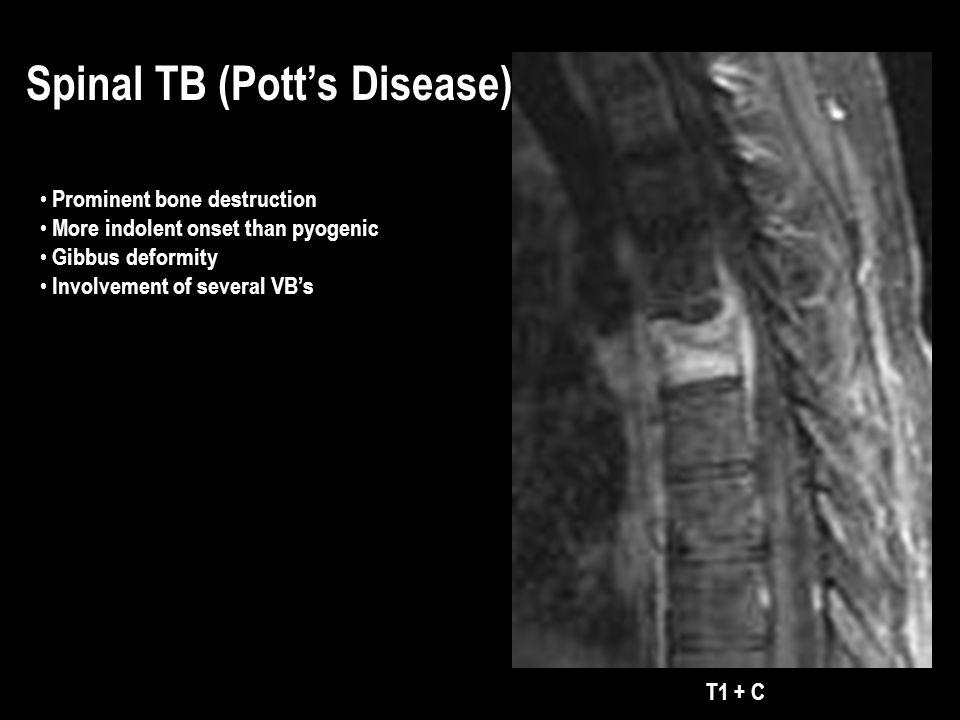 T1 + C Spinal TB (Potts Disease) Prominent bone destruction More indolent onset than pyogenic Gibbus deformity Involvement of several VBs