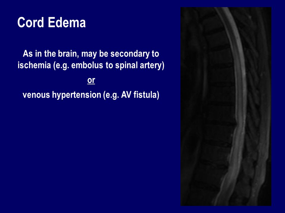 Cord Edema As in the brain, may be secondary to ischemia (e.g. embolus to spinal artery) or venous hypertension (e.g. AV fistula)
