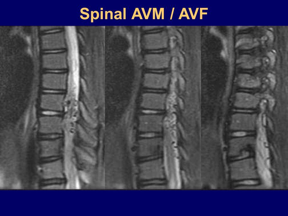 Spinal AVM / AVF