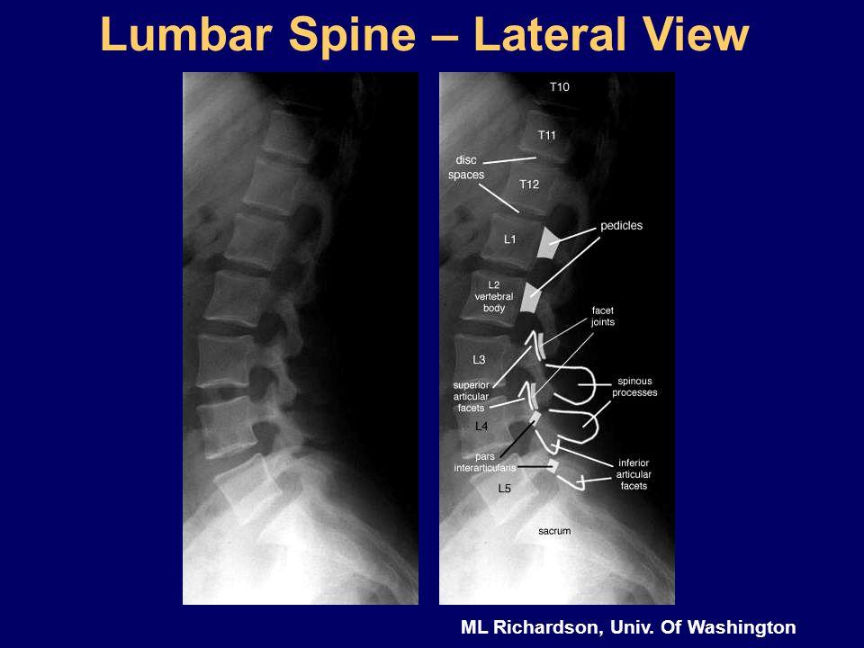 ML Richardson, Univ. Of Washington Lumbar Spine – Lateral View