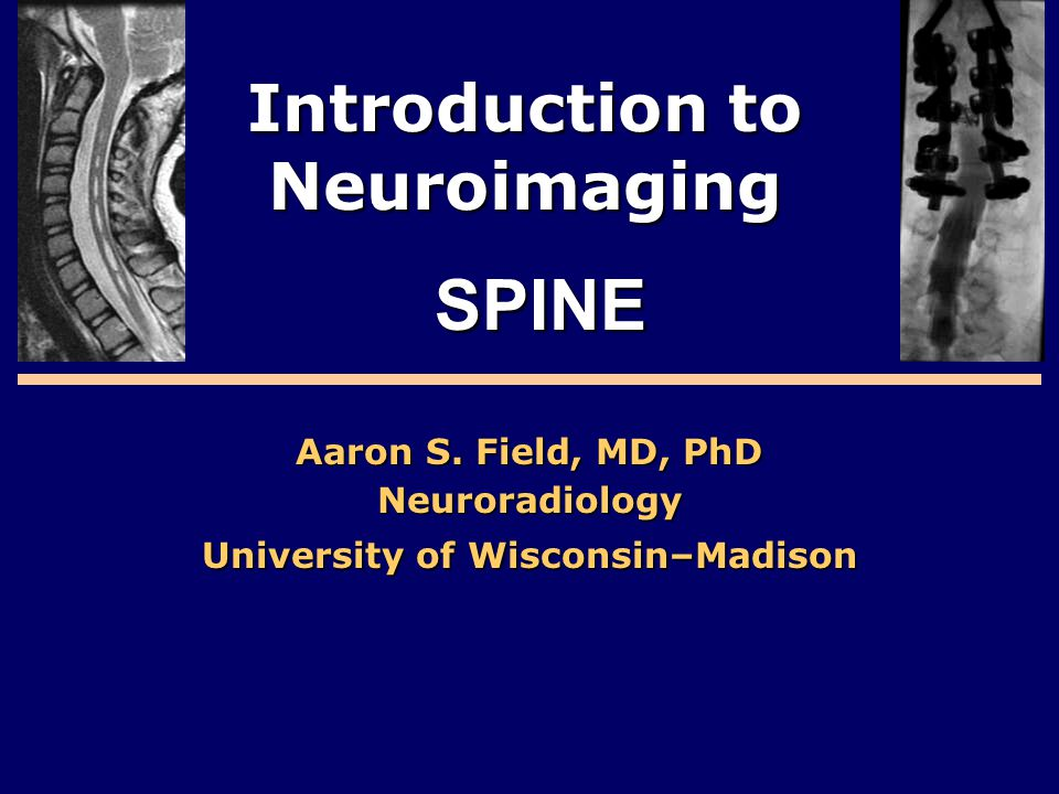 Introduction to Neuroimaging Aaron S. Field, MD, PhD Neuroradiology University of Wisconsin–Madison SPINE