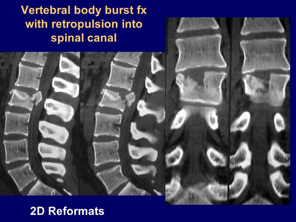 Vertebral body burst fx with retropulsion into spinal canal 2D Reformats