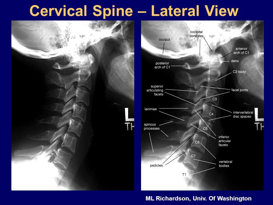ML Richardson, Univ. Of Washington Cervical Spine – Lateral View