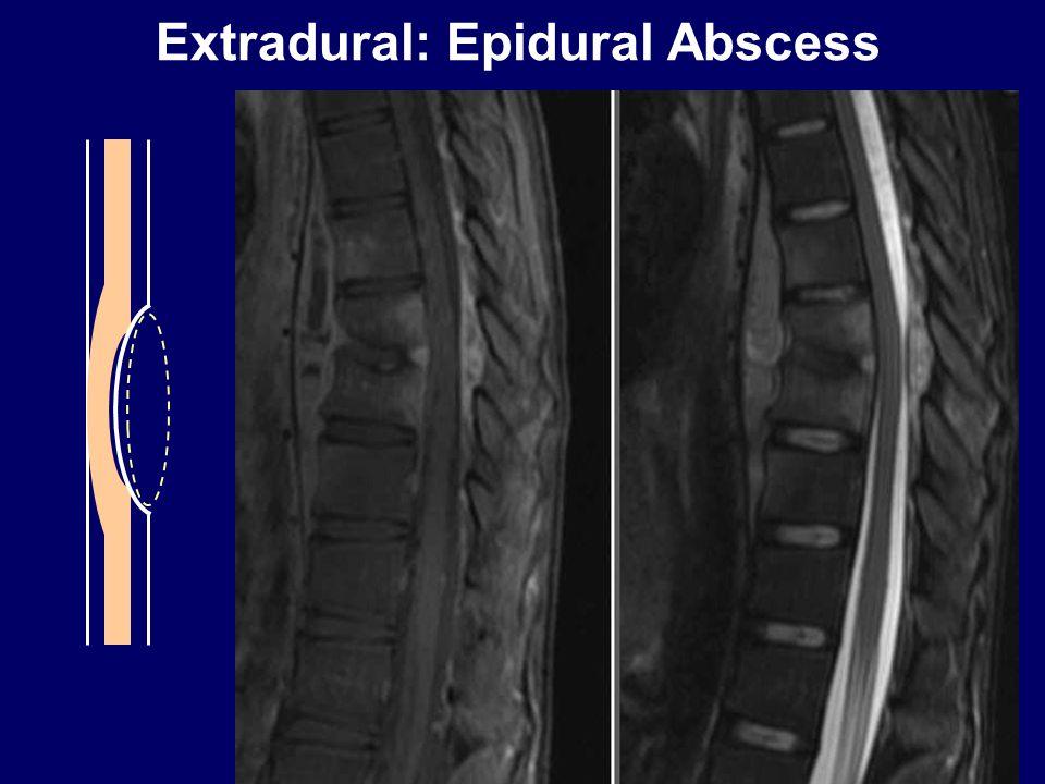 Extradural: Epidural Abscess