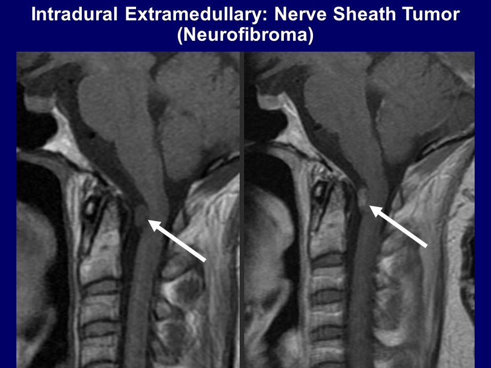 Intradural Extramedullary: Nerve Sheath Tumor (Neurofibroma)
