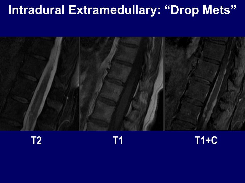 Intradural Extramedullary: Drop Mets T2 T1 T1+C