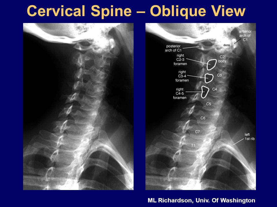ML Richardson, Univ. Of Washington Cervical Spine – Oblique View