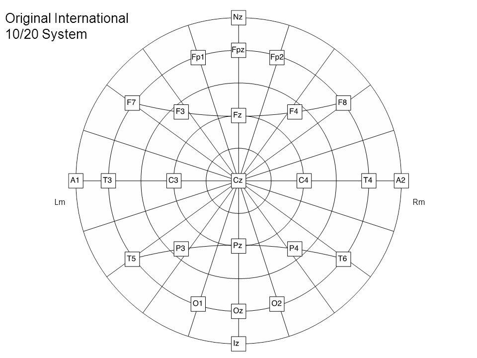 LmRm Original International 10/20 System
