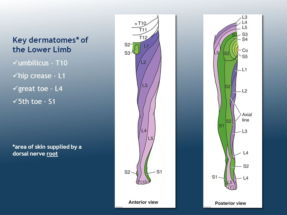 Key dermatomes* of the Lower Limb umbilicus - T10 hip crease - L1 great toe - L4 5th toe - S1 *area of skin supplied by a dorsal nerve root