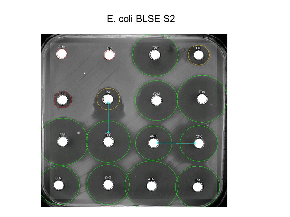 E. coli BLSE S2
