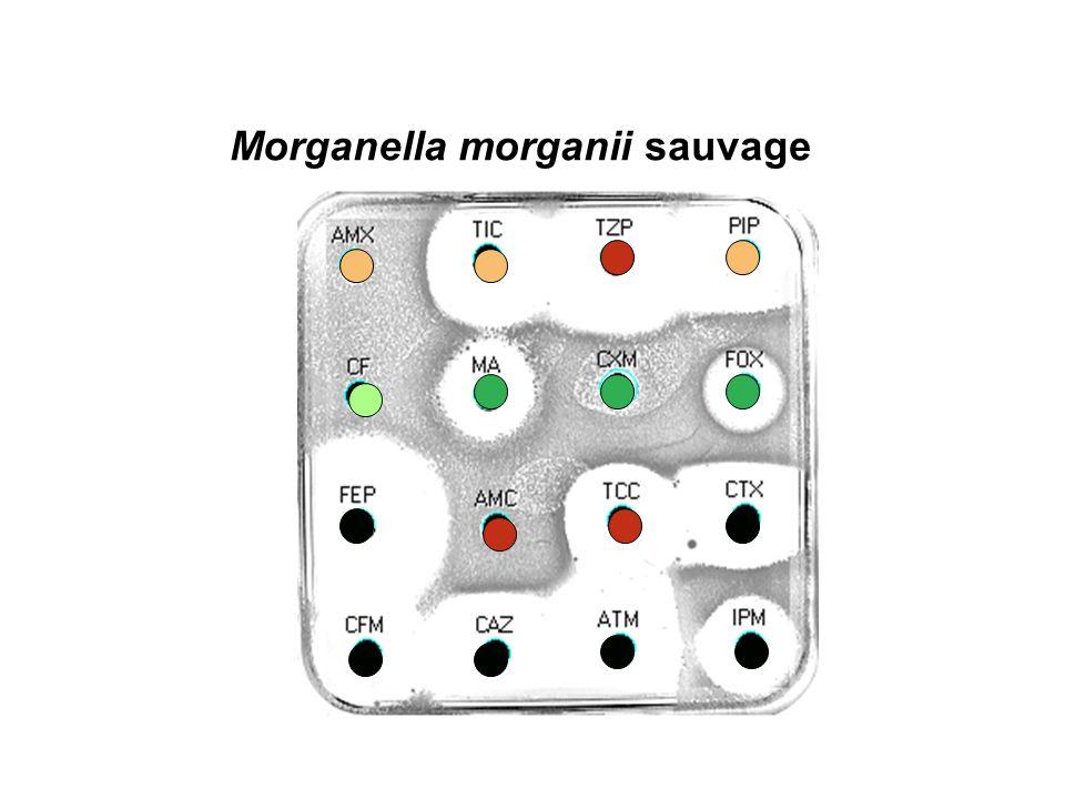 Morganella morganii sauvage