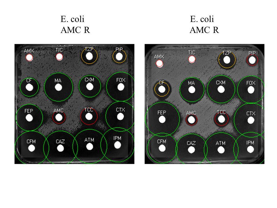 E. coli AMC R E. coli AMC R
