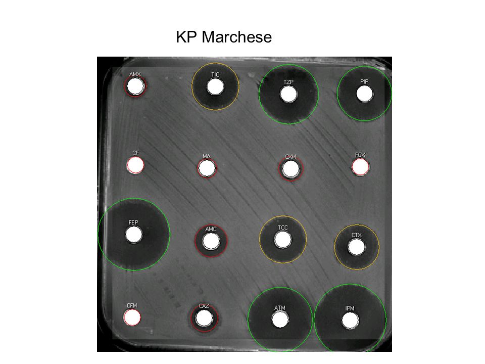 KP Marchese