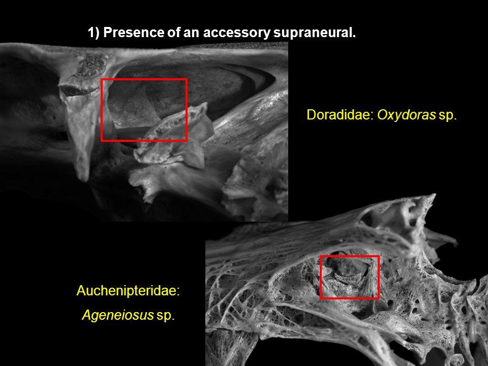 Auchenipteridae: Ageneiosus sp. Doradidae: Oxydoras sp. 1) Presence of an accessory supraneural.