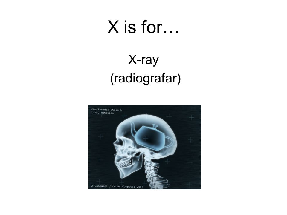 X is for… X-ray (radiografar)