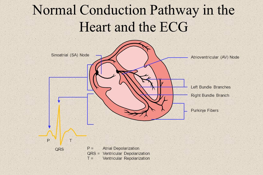 Normal Conduction Pathway in the Heart and the ECG Sinoatrial (SA) Node Atrioventricular (AV) Node Left Bundle Branches Right Bundle Branch Purkinje F