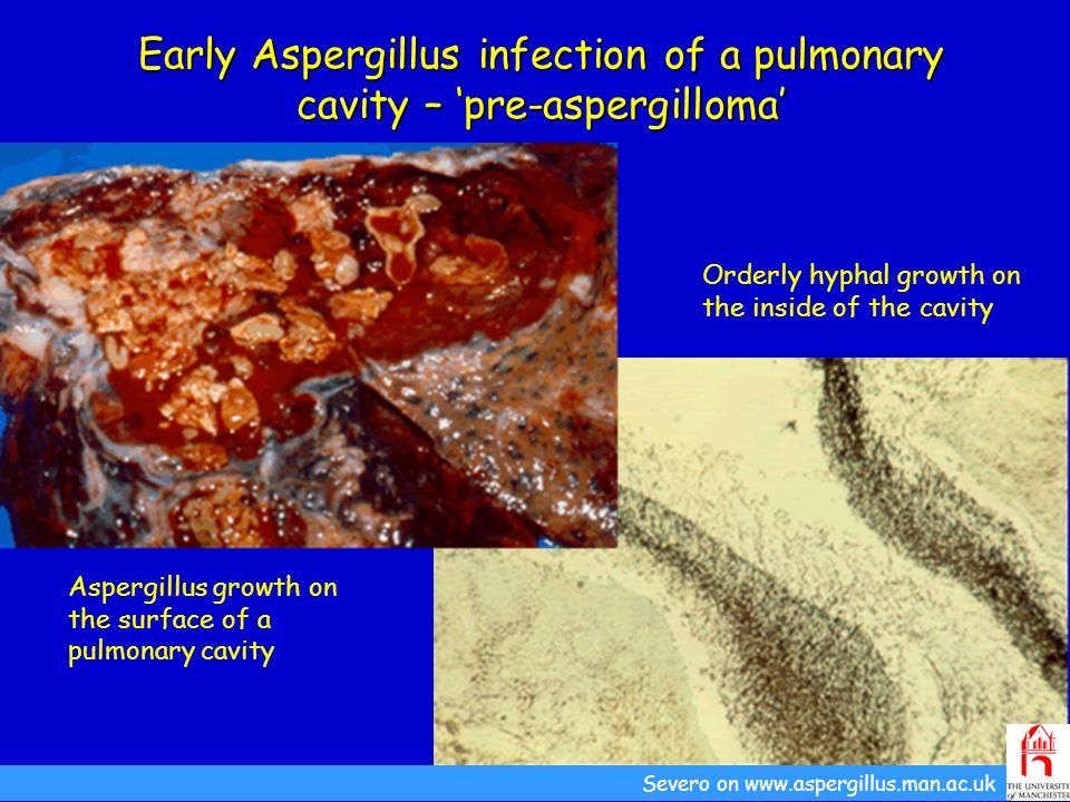 Early Aspergillus infection of a pulmonary cavity – pre-aspergilloma Aspergillus growth on the surface of a pulmonary cavity Severo on www.aspergillus